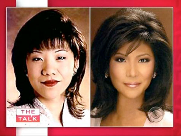 "Julie Chen of ""The Talk"" admits to having eye surgery."