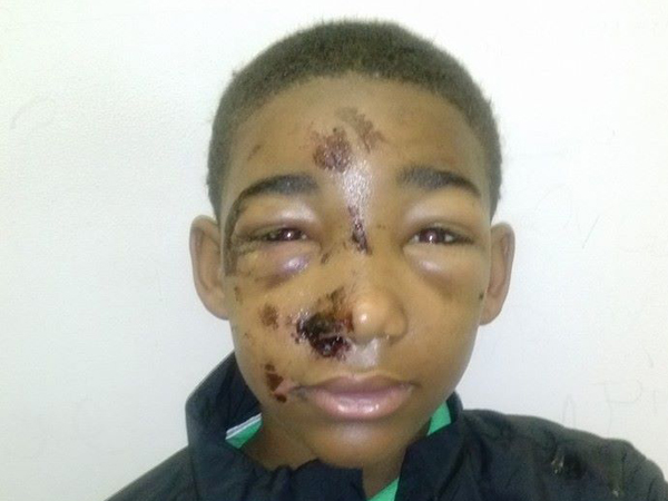 Based on his extensive facial injuries, Marissa Sargeant said she believes police assaulted her son, Joseph Williams, 14 (pictured). (Photo provided by Marissa Sargeant)