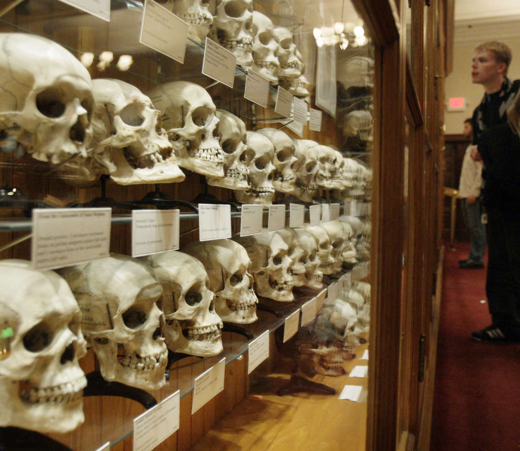 ELIZABETH ROBERTSON / STAFF PHOTOGRAPHER The Mutter Museum is home to the Hyrtl Skull Collection, which displays 139 human skulls.