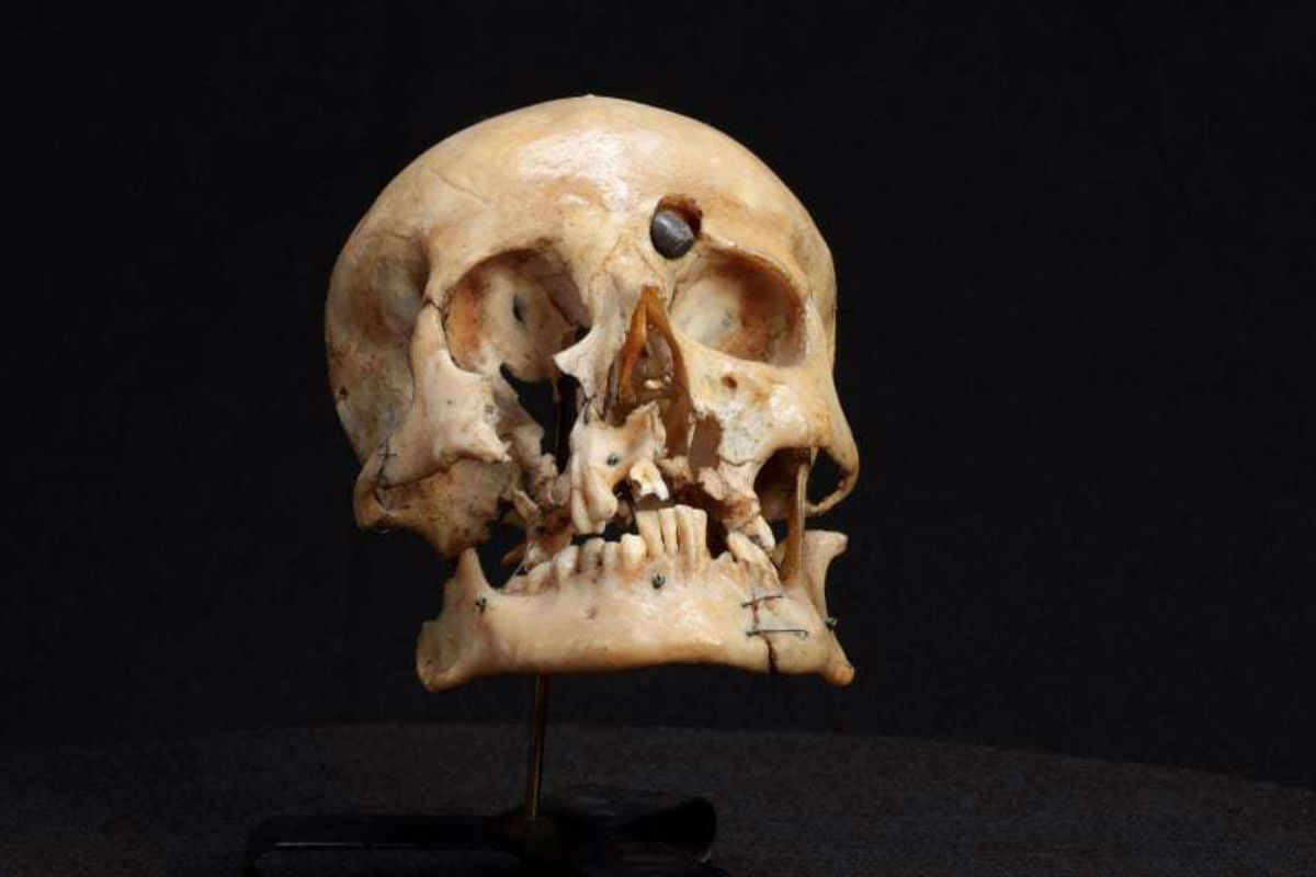 This skull of an Australian soldier who was killed in World War I hate been on display at the medical museum.