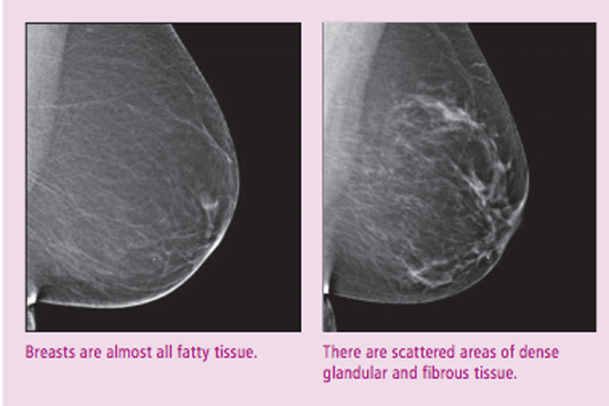 Breast density – facts, not fear