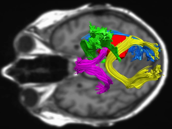 An example of diffusion tensor imaging shows a tumor in red surrounded by a bundle of critical brain circuitry.
