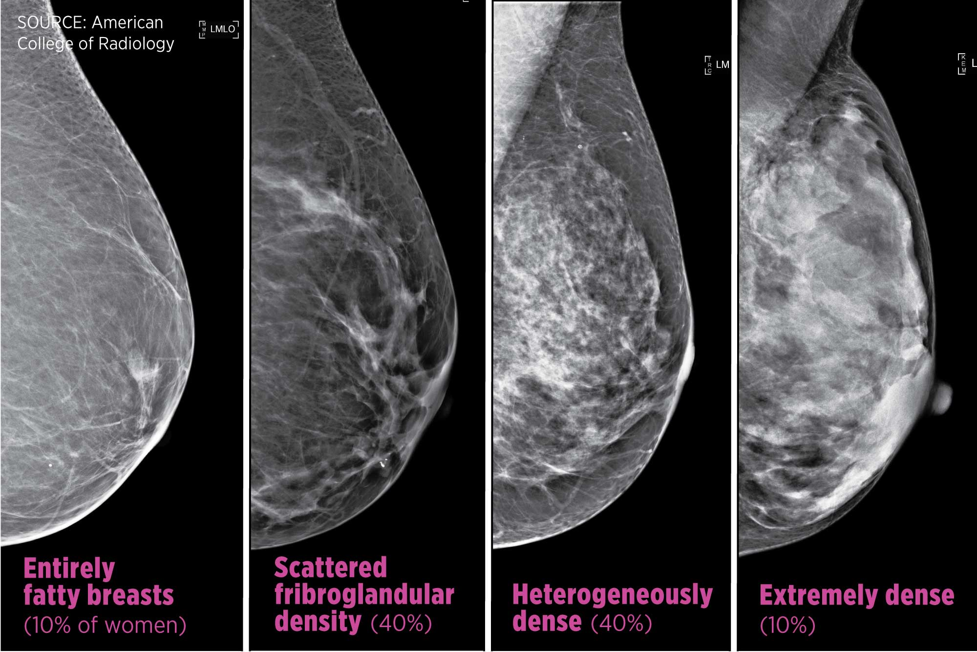 Breast Cancer Density Laws Mean More Tests Unclear