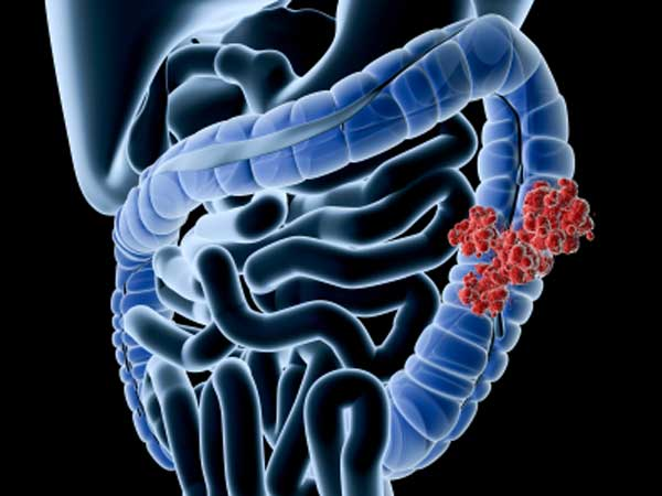 Colon cancer is curable. (iStockphoto)