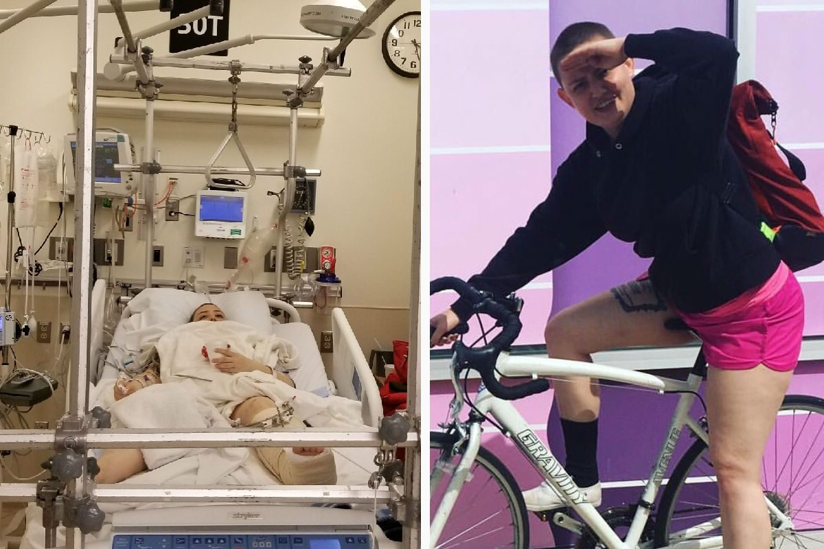 Becca Refford, 24, was struck by a truck while riding her bike in Center City. She suffered a broken pelvis, shattered hip, and other injuries and is recovering at Thomas Jefferson University Hospital.