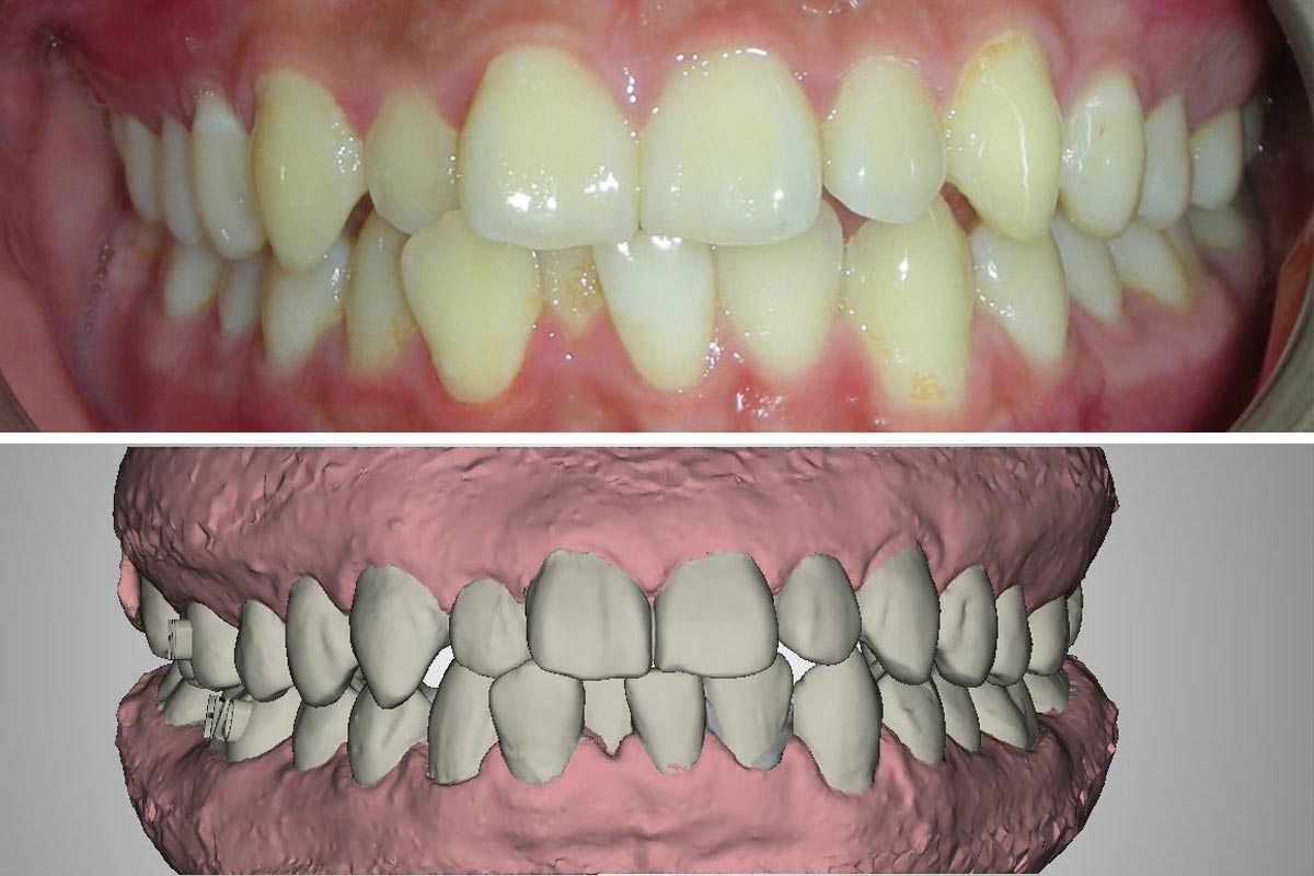 3D scan, braces, orthodontist