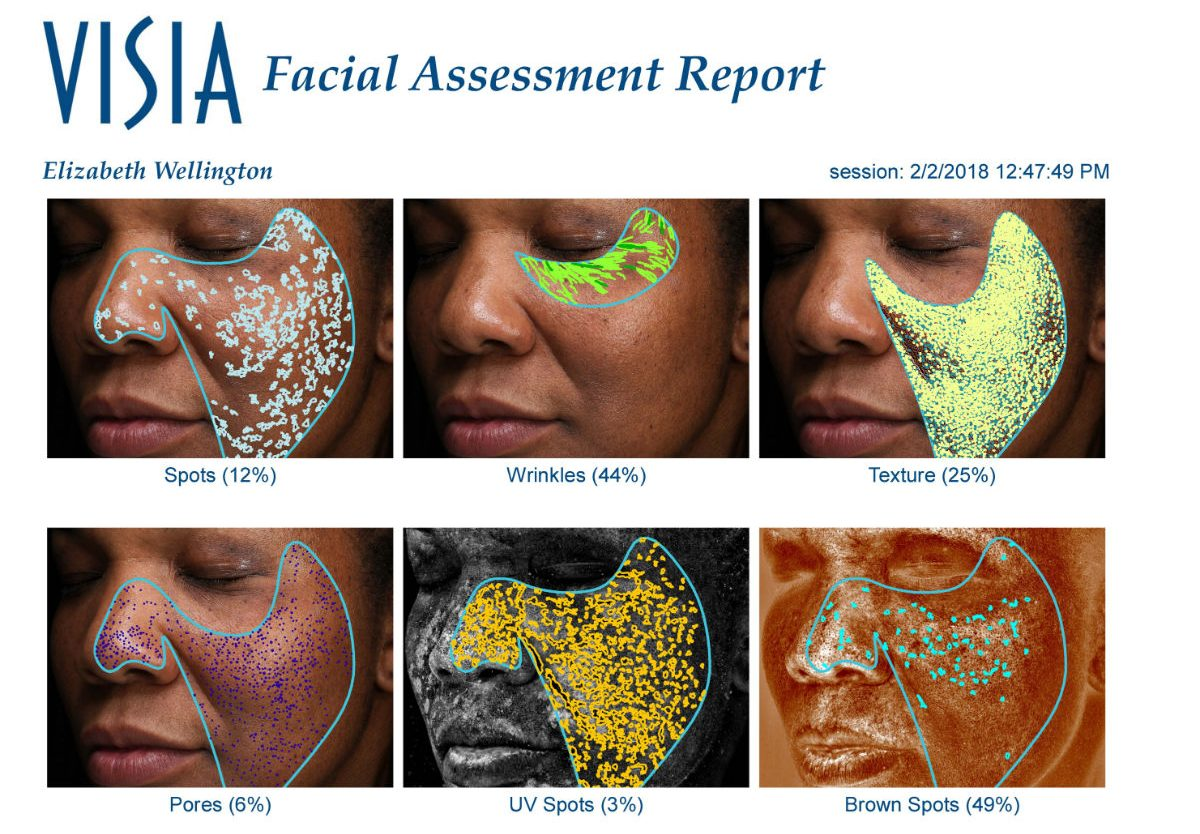 My Visia Complexion Analysis. It´s no fun, but at least it´s free.