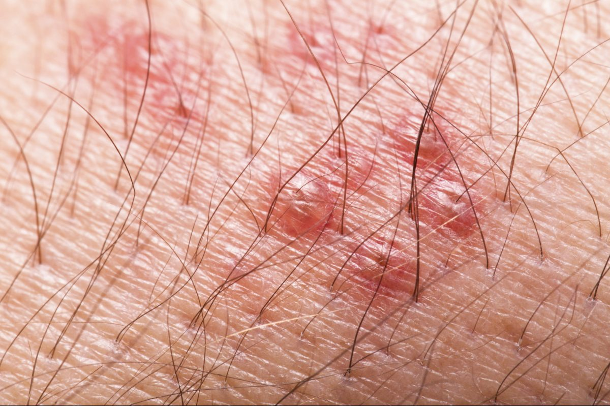 Herpes zoster (shingles) rash with blisters.