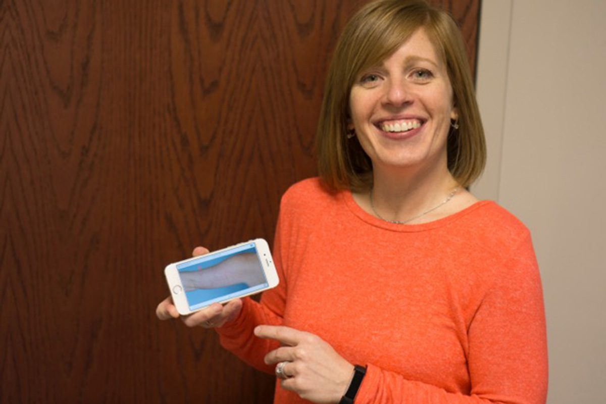 Kim Herrity shows an image of her upper arm as it appears on a smartphone app that helps her monitor skin changes.