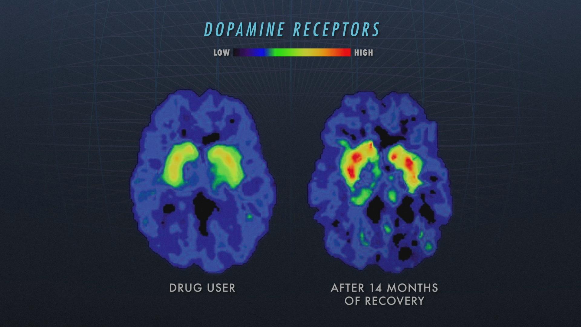 Brain scans, Nova
