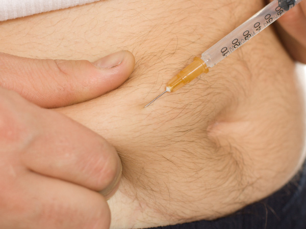 12 ways gut-bug transplants for weight loss could change the world. (istockphoto.com)