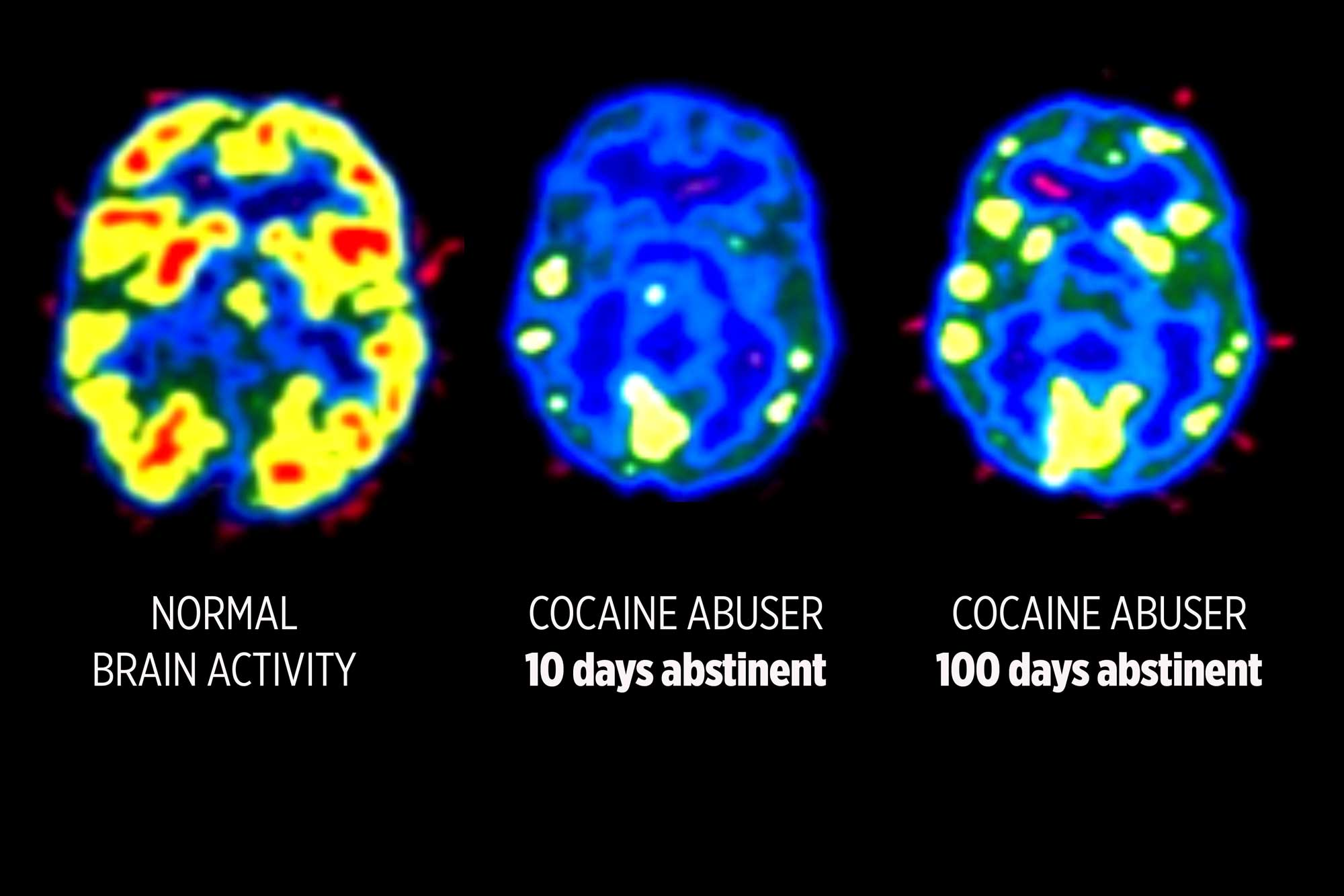 Enhanced PET scans using radioactive tracers show reduced neurotransmitter activity even months after last cocaine use. Cocaine affects brain activity very differently ó and more visibly ó than opioids. But addictions of all kinds can change responses in ways that are beyond an individualís control.  SOURCE: Nora D. Volkow, et. al. (1993)