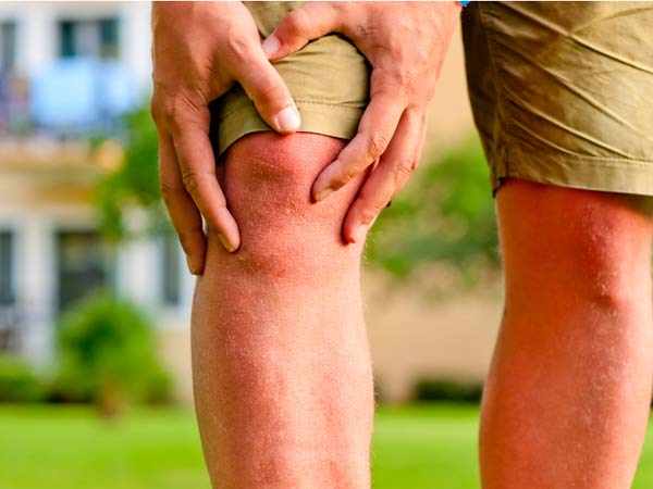 Prevention is key when it comes to ACL tears. (istockphoto.com)