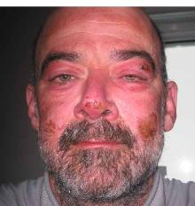 Todd Carmichael, after 39 days in the Antarctic.