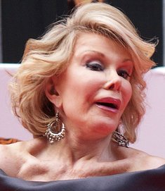 Joan Rivers shows off some of her surgery. (AP Photo/ Max Nash)
